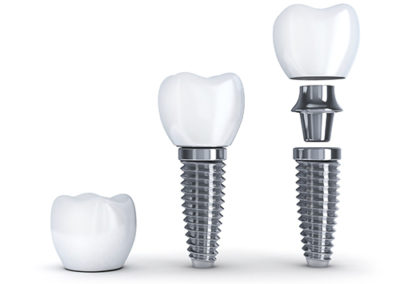 Tooth implant disassembled