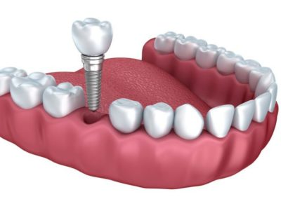 brickstables__dental_implants_single