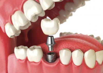 implanty_zebowe-Kopia.573x430.4975b572