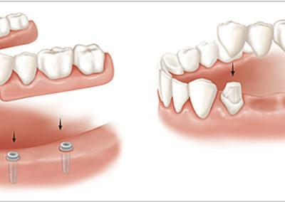 protetyka-stomatologiczna-Leszno